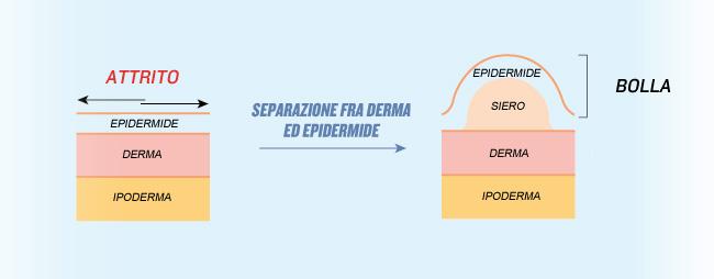 schema derma, epidermide