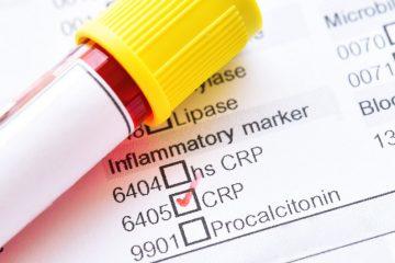 O que é a Proteína C Reativa (PCR)?
