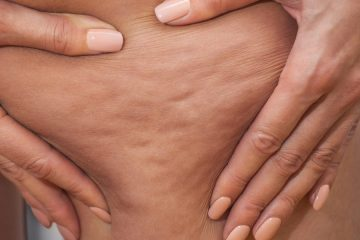 What is cellulite? How can we prevent it and fight it?